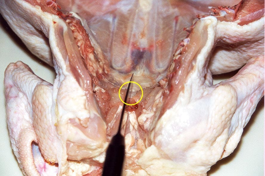 Cutting cartilage to expose top of breastbone